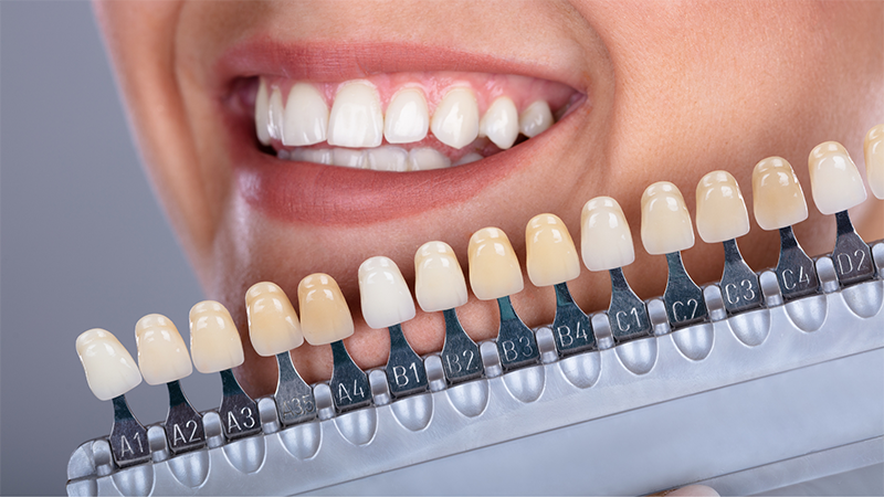 Comment rendre mes dents blanches ? 2